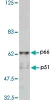 PAB1174 - HIV-1