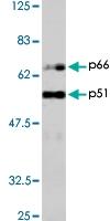 PAB1175 - HIV-1