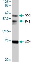 PAB1176 - HIV-1