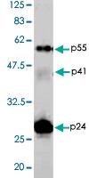 PAB1177 - HIV-1
