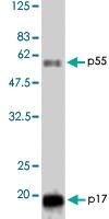 PAB1178 - HIV-1