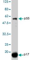 PAB1179 - HIV-1