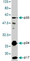 PAB1181 - HIV-1