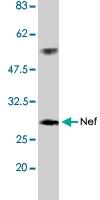 PAB1182 - HIV-1