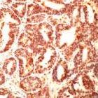 PAB11839 - TUBG1 / Tubulin gamma 1