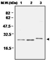 PAB1189 - Peroxiredoxin-4 / PRDX4
