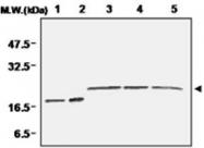 PAB1193 - Superoxide Dismutase 1 / SOD1