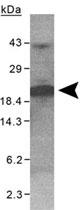 PAB11978 - XAGE-1 / G antigen family D member 2