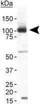 PAB11992 - TRPA1