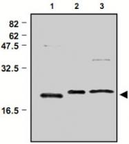 PAB1200 - Peroxiredoxin-3 / PRDX3