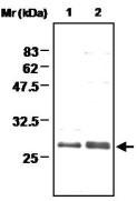 PAB1201 - Methionine Sulfoxide Reductase A / MSRA