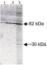 PAB12041 - SCARB2
