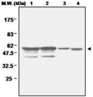 PAB1207 - Glutathione reductase