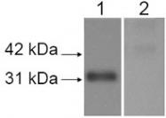 PAB12104 - Lysyl oxidase