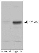 PAB12124 - HIF2A / HIF2 alpha