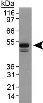 PAB12130 - TIP47 / M6PRBP1