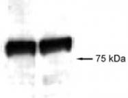 PAB12151 - AGGF1 / VG5Q