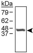 PAB12155 - Cathepsin E