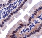 PAB12158 - Lysyl oxidase
