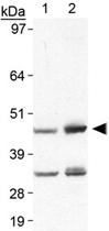 PAB12159 - Perilipin-5