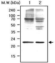 PAB1218 - Peroxiredoxin-1 / PRDX1