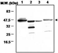 PAB1220 - Glutamine synthetase