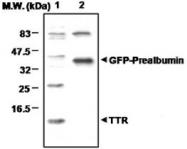 PAB1221 - Transthyretin / Prealbumin