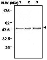 PAB1222 - Neuron specific enolase