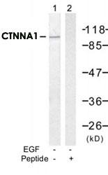 PAB12225 - Catenin alpha-1 / CTNNA1
