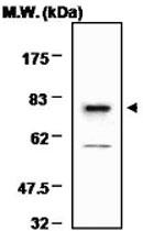 PAB1225 - Transglutaminase-2 (TGM2)
