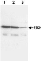 PAB12277 - CD120a / TNFR1