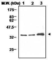 PAB1229 - Cyclin D1
