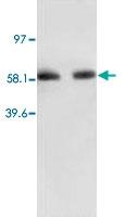 PAB12295 - RELA / NF-kB p65