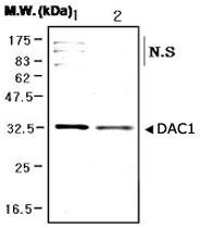 PAB1231 - VDAC1