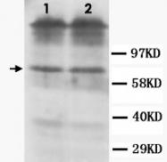 PAB12318 - Dopamine D1 receptor