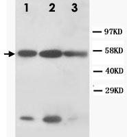 PAB12326 - Cytokeratin 8
