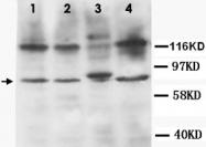 PAB12329 - CD120b / TNFR2