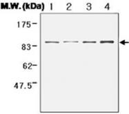 PAB1233 - Catenin beta-1
