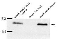 PAB12343 - NUP35