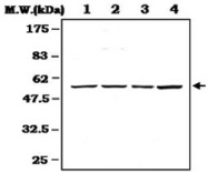 PAB1235 - Cyclin E1