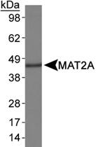 PAB12387 - MAT2A