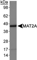 PAB12388 - MAT2A