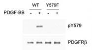 PAB1240 - CD140b / PDGFRB
