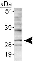 PAB12411 - INSIG1