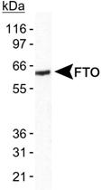 PAB12425 - FTO