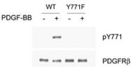 PAB1243 - CD140b / PDGFRB