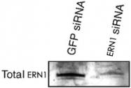 PAB12433 - ERN1 / IRE1