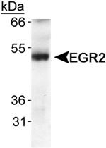 PAB12439 - EGR2