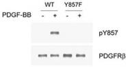 PAB1244 - CD140b / PDGFRB