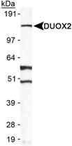 PAB12443 - Dual oxidase 2